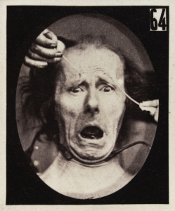 L0037463 Experiments in physiology. Facial expressions; Terror Credit: Wellcome Library, London. Wellcome Images images@wellcome.ac.uk http://wellcomeimages.org The facial expression of terror on the human face being induced by electrical currents. Photograph 19th Century By: Guillaume Benjamin Amand Duchenne de BoulogneMécanisme de la physionomie humaine, ou, Analyse électro-physiologique de l'expression des passions Guillaume Benjamin Amand Duchenne de Boulogne Published: 1862 Copyrighted work available under Creative Commons Attribution only licence CC BY 4.0 http://creativecommons.org/licenses/by/4.0/